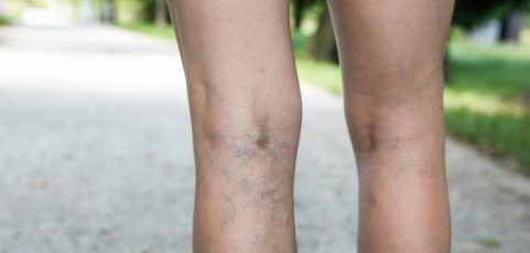 Preventing Varicose Veins